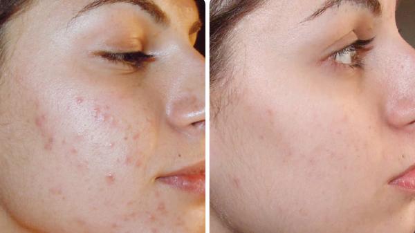 Derma Pen tegen acne en littekens
